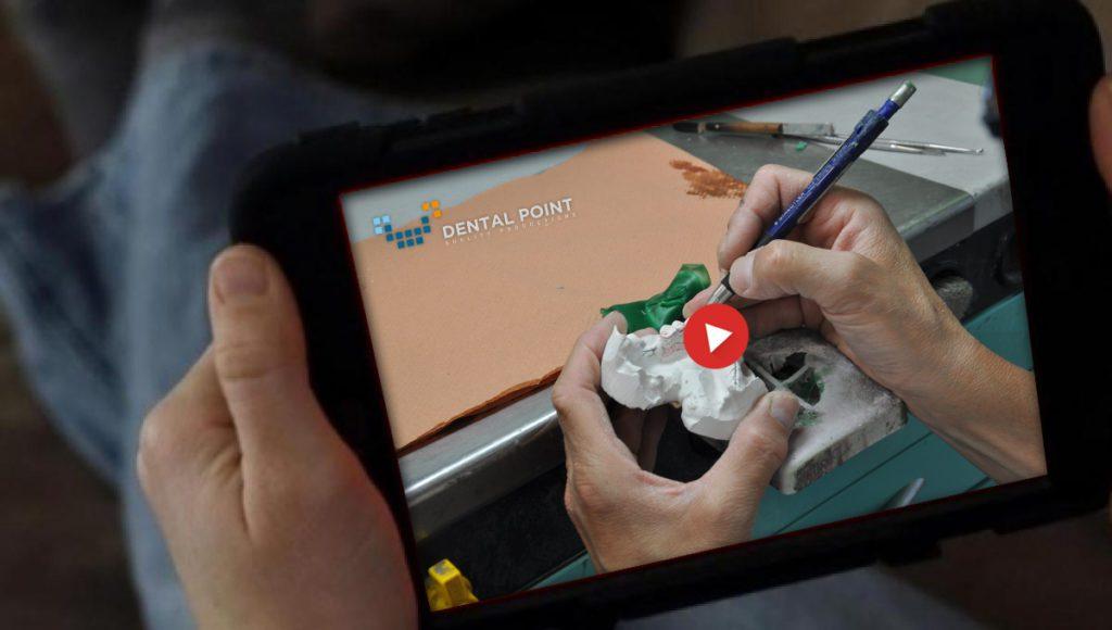 video protesi scheletrata