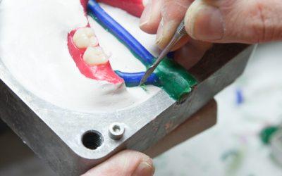 Lavorazione protesi nylon